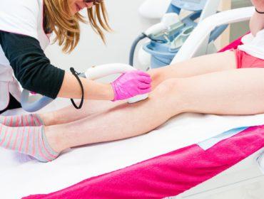 Depilacja laserowa nóg, czy warto? Efekty po pierwszym zabiegu